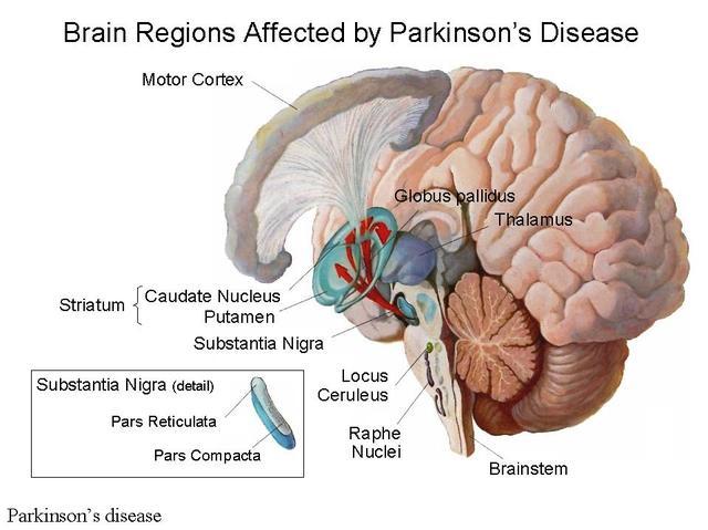محل ضایعه در بیماری پارکینسون