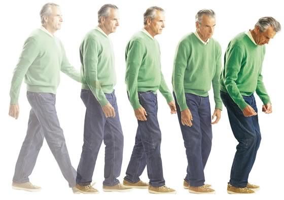 وضعیت بدن در بیماری پارکینسون